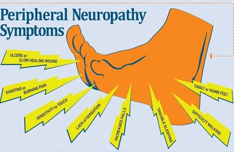Diabetic Peripheral Neuropathy| Spine Hospital in Nagercoil